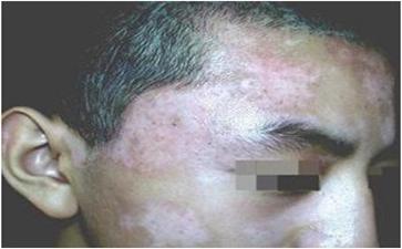 郑州男性白癜风复发的病因是什么